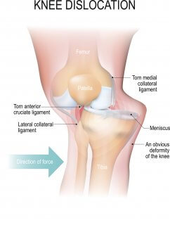 Medical Diagram illustrating a torn MCL, one of the most common hockey injuries