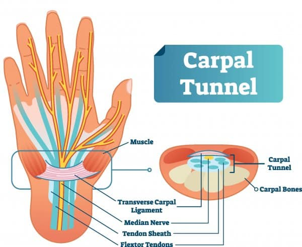 Medical diagram of the wrist and the carpal tunnel. Treatment of carpal tunnel syndrome is the first answer to the question - what is a wrist brace used for?