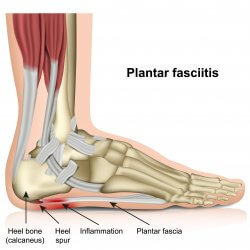 Medical Diagram of the bottom of the foot. It shows inflammation of the plantar fascia, leading to plantar fasciitis