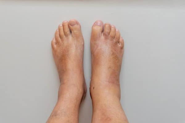 A swollen ankle. This is one of the symptoms that can be used by those wanting to learn how to know if you have sprained your ankle.