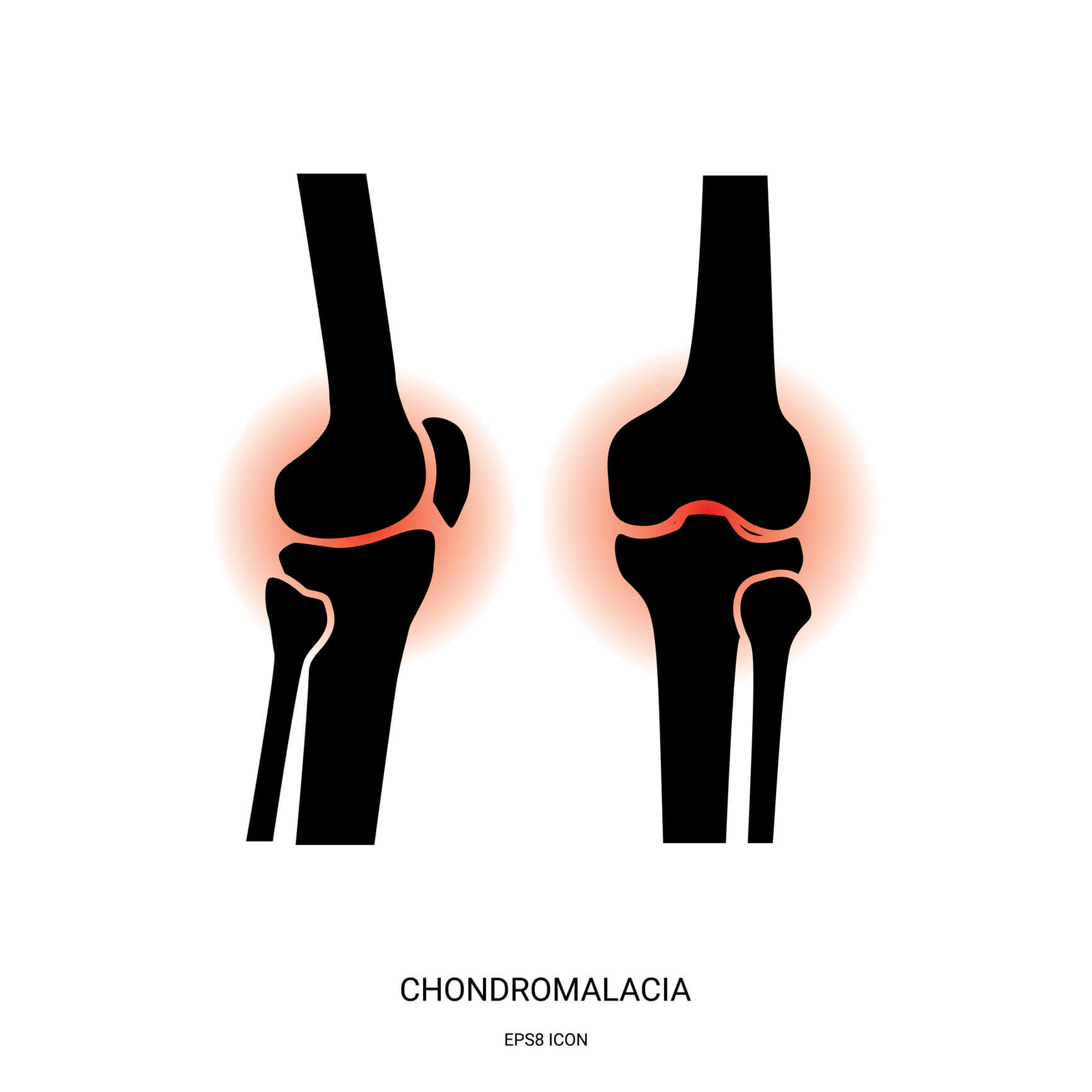 Medical Image of a knee affected by Chondromalacia