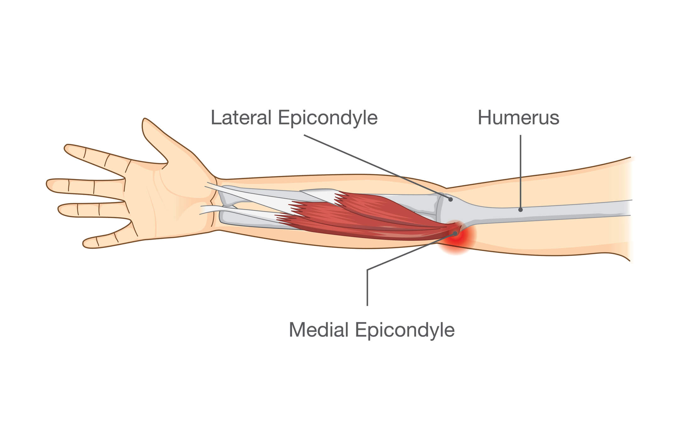 Medical Image of the medial epicondyle of the elbow, where golfers elbow develops