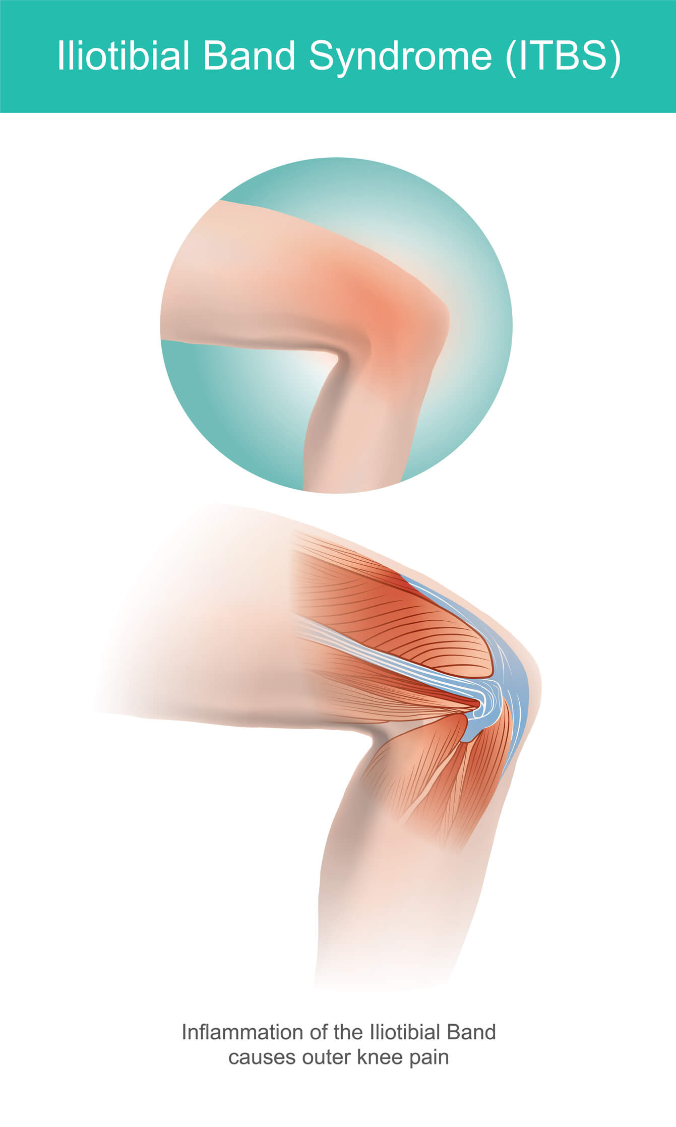 Medical image of a knee affected by IT band syndrome.