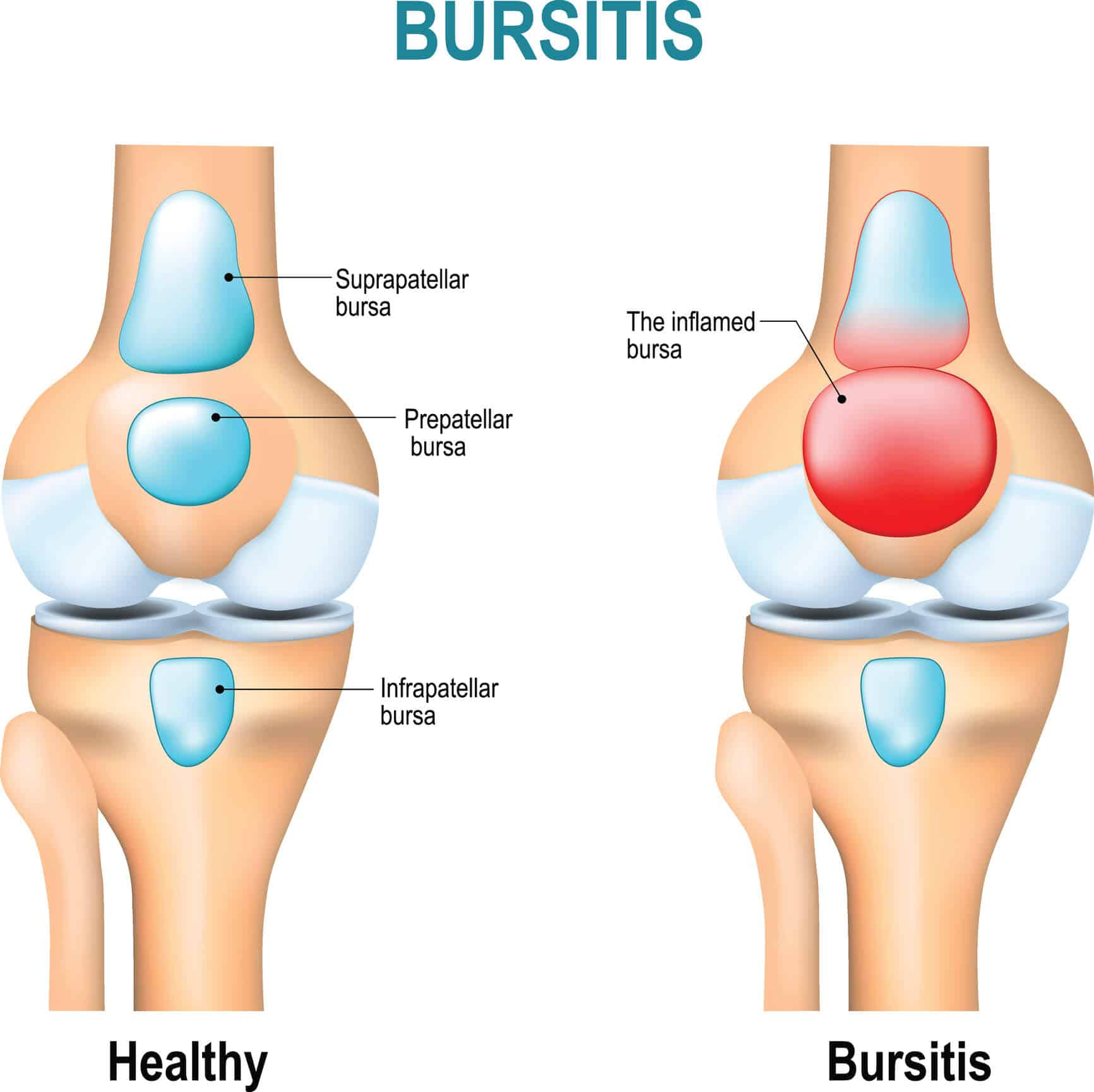 Medical image of a healthy knee and one affected by knee bursitis