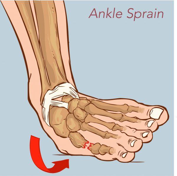 Diagram showing an ankle sprain