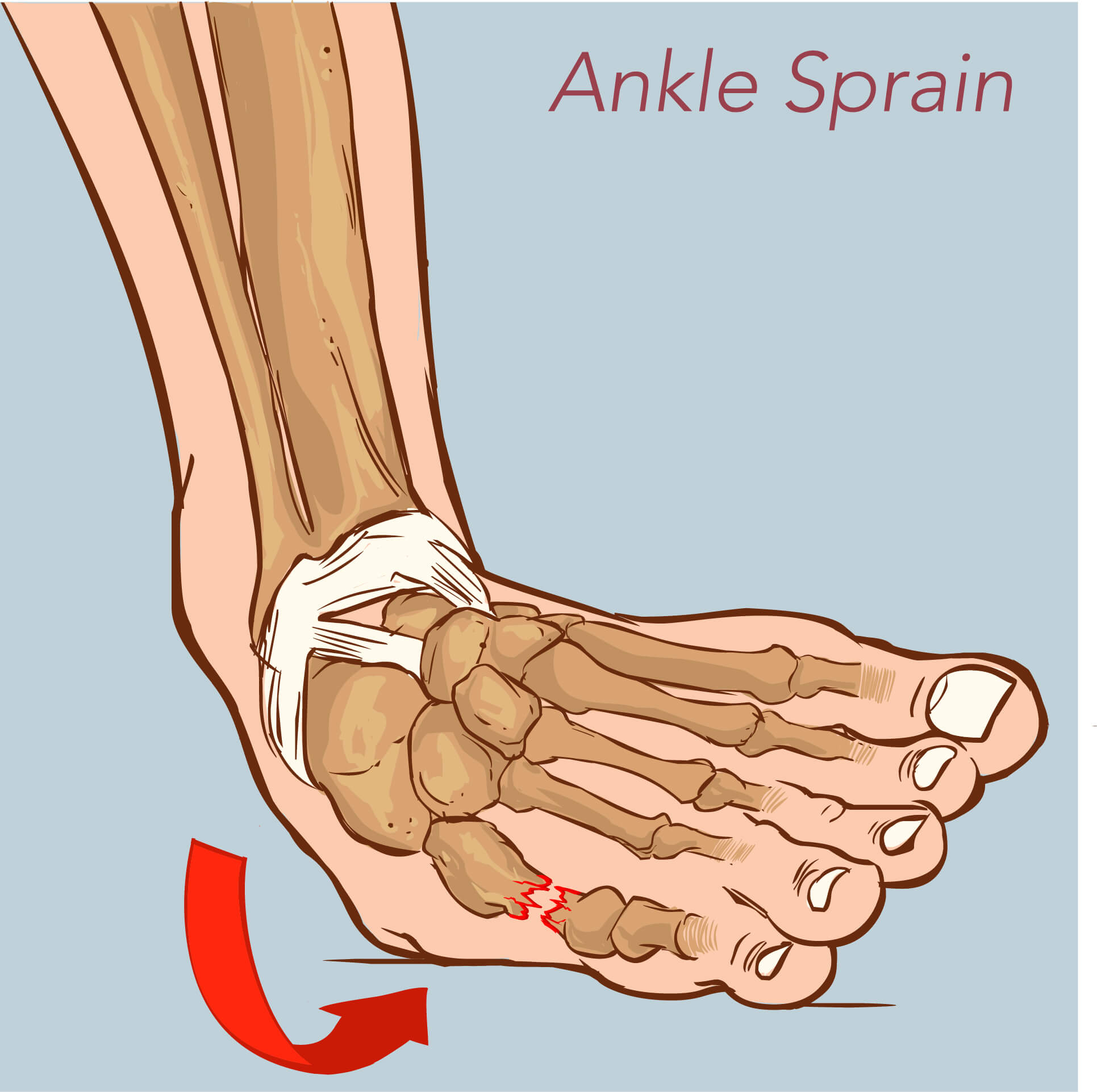 Image of a rolled ankle resulting in a sprain