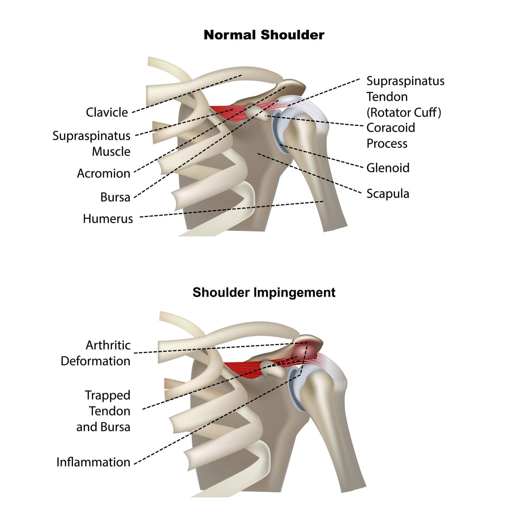 Image of a shoulder showing how shoulder impingement develops