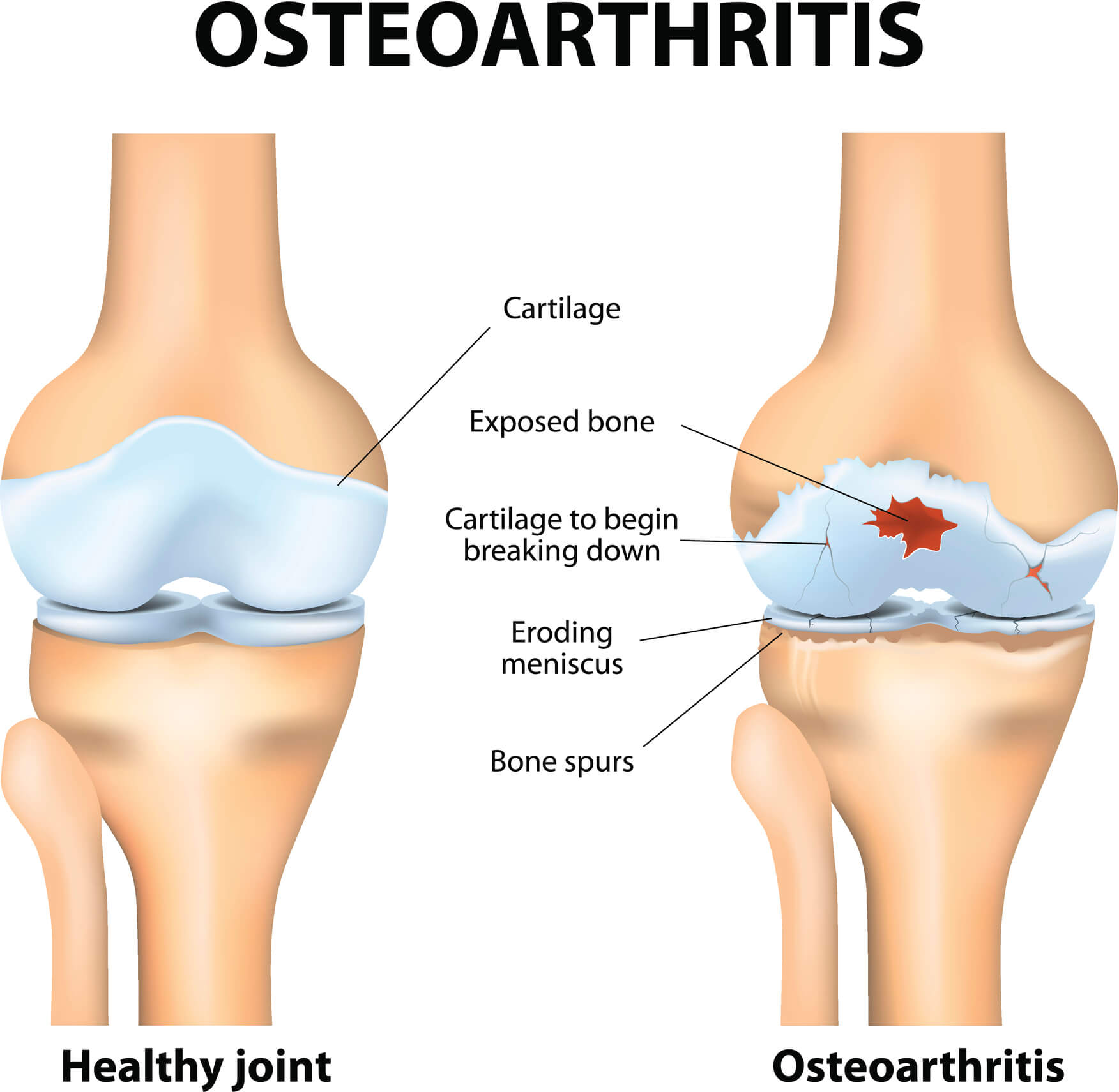 Images of 2 knees - a healthy one and another affected by knee osteoarthritis.