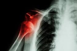 X Ray Image Of An Anterior Shoulder Dislocation