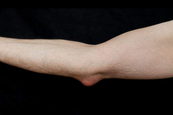 Elbow affected with olecranon bursitis, also known as student's elbow. This is a medical condition caused by the inflammation of the bursa located under the elbow's Olecranon due to strong single trauma or repetitive smaller traumas