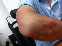 Young male with injured and bruised elbow, possibly due to a sprain or strain