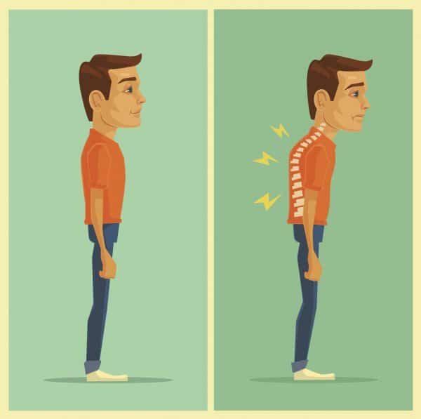 Illustration of good posture on the left and poor posture on the right. Having poor postural habits is one of the most important occasions when you should wear a back brace