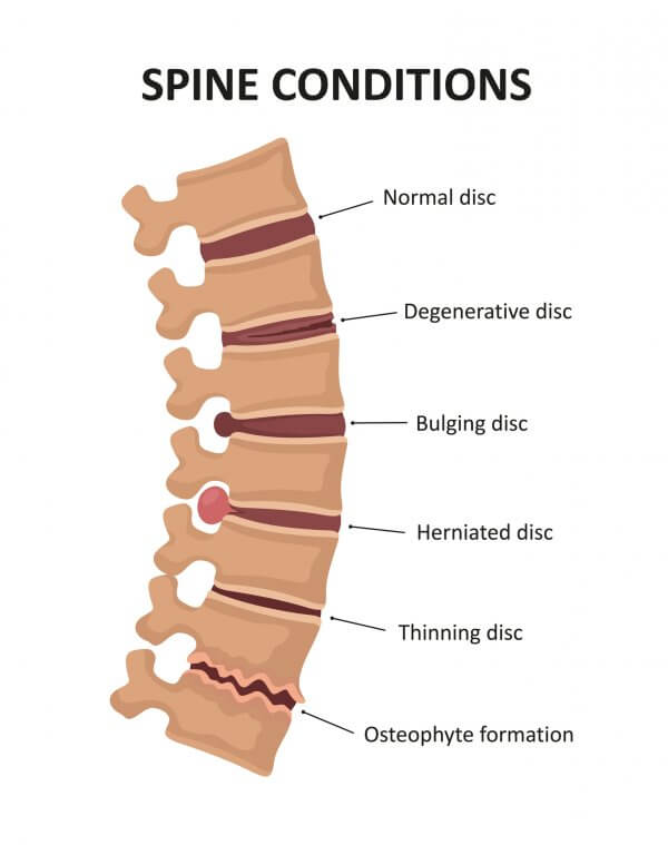Illustration of the stages of spinal Degenerative Disc Disease a.k.a. Slip