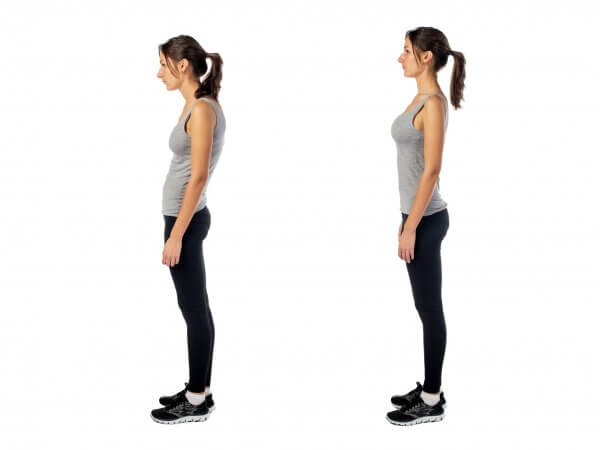 Illustration of a woman with excessive lordosis on the left and normal lordosis on the right.